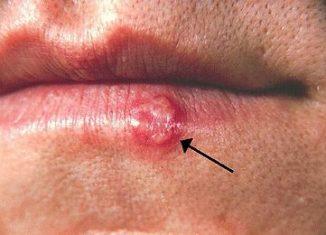 herpes375px-Herpes(PHIL_1573_lores)